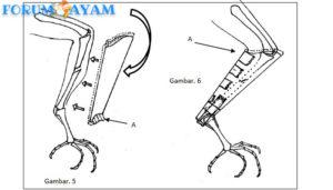 cara menyambungkan kembali tulang kaki